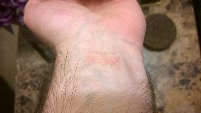 itchy rash on wrist that comes and goes